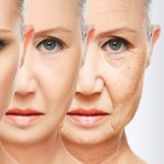 tratamientos esteticos faciales - carillas composite